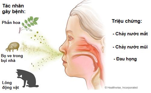 Nguyên nhân viêm mũi dị ứng 1