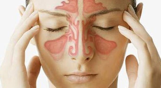 Cách chữa trị bệnh viêm xoang mũi 1