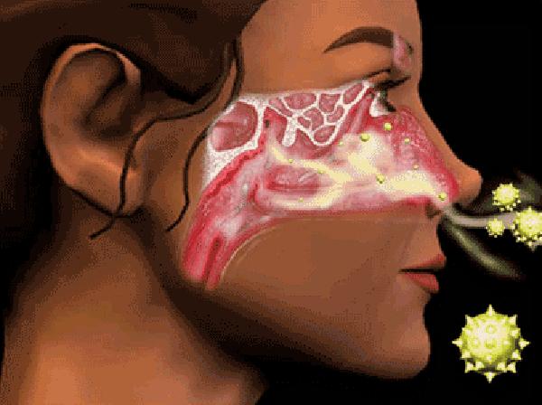 """""""Vắc xin"""" trị viêm mũi dị ứng 1"""