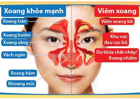 Tìm hiểu về bệnh viêm xoang trán 1
