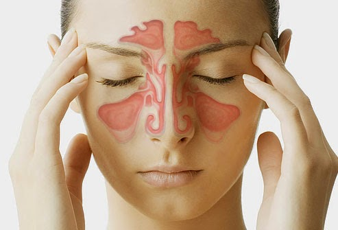 Triệu chứng viêm đa xoang và cách điều trị 1