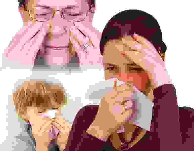 Viêm xoang trán có nguy hiểm không? 1