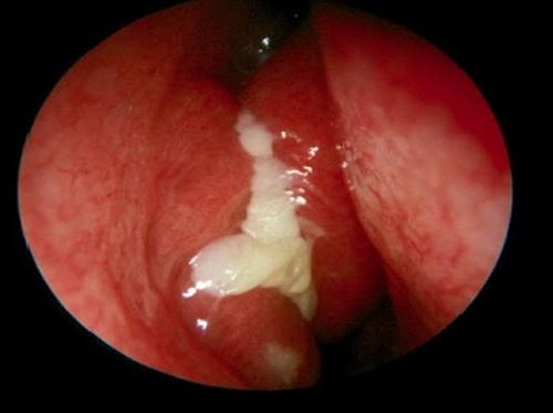 Viêm mũi có mủ, nguyên nhân và điều trị 1